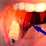 Портативное пуско зарядное (пусковое) устройство для аккумулятора автомобиля High-Power 25100 mAh